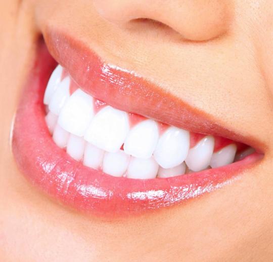 2 540x517 - How to Maintain Healthy Teeth