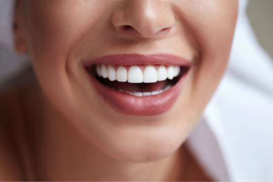 4 540x360 - How to Maintain Healthy Teeth